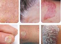 男性脓疱型银屑病预防