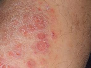 牛皮癣的皮肤损害怎么诊断